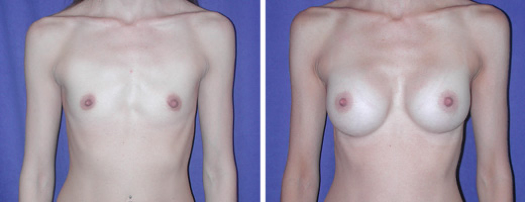 Breast Augmentation- Saline