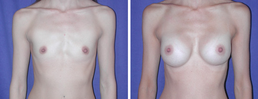 1753 breast augmentation st charles plastic surgery dr ghaderi featured