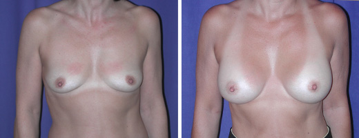 "45 years old, 5'0"", 100lbs, 250cc Saline Implants, Preop 34A to Postop 34C"