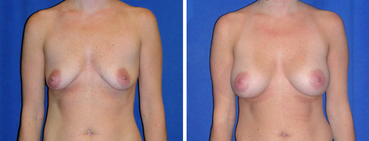 """39 years old, 5'8"""", 135lbs, 350cc, Silicone Gel Implants, Preop 36B to Postop 36D"""