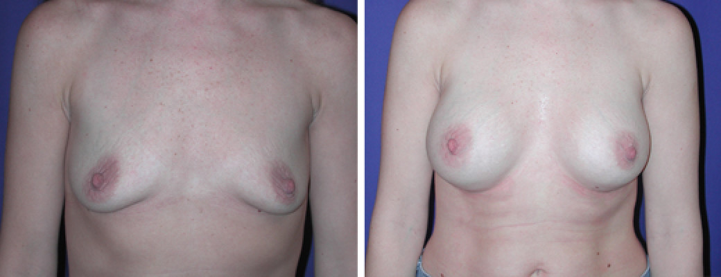 Breast Augmentation – Saline