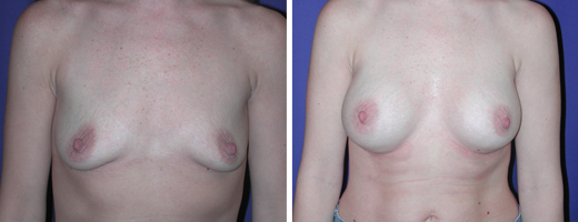 """35 years old, 5'7"""", 155lbs, 400cc Saline Implants, Preop 36A to Postop 36C"""