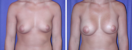 """22 years old, 5'9"""", 150lbs, 350cc Saline Implants, Preop 36A to Postop 36C"""