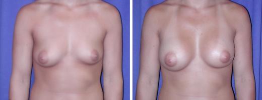 Breast Augmentation – Saline