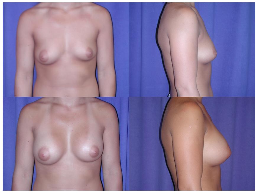 Breast implant  Wikipedia