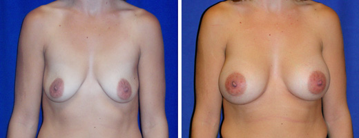 """31 years old, 5'6"""", 137lbs, 375cc Saline Implants, Preop 36A"""
