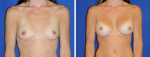 "28 years old, 5'0"", 95lbs, 325cc Silicone/Gel Implants, Preop 32A to Postop 32C"