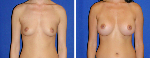 "33 years old, 5'5"", 116lbs, 325cc Silicone/Gel Implants, Preop 32B to Postop 32D"