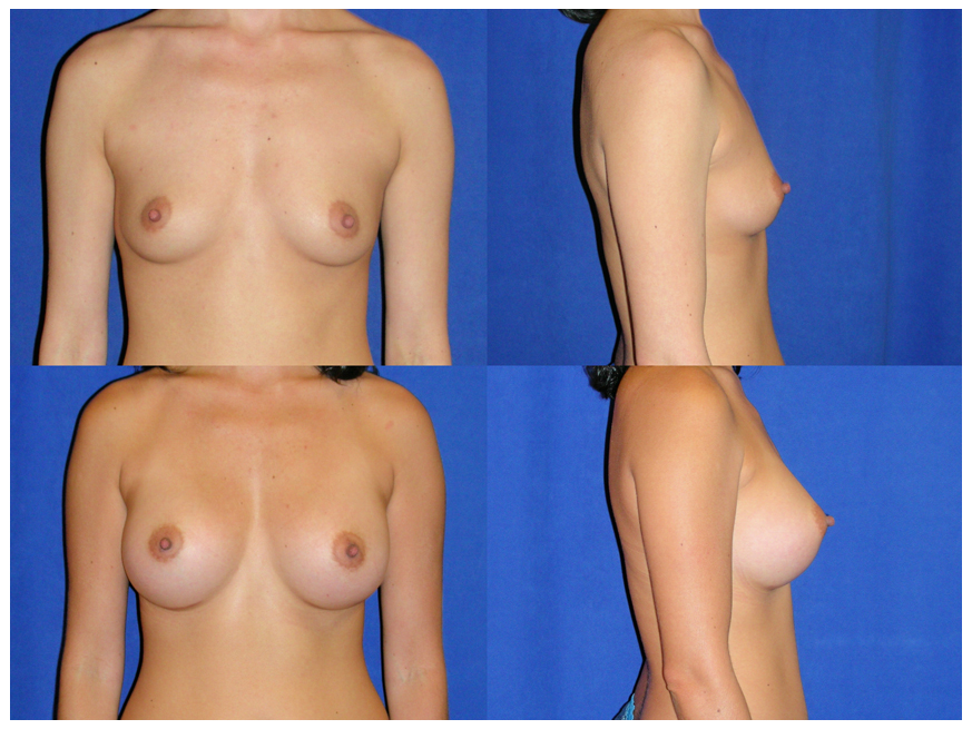 Breast - Illinois Cosmetic and Plastic Surgery