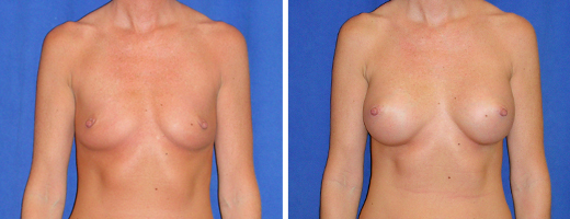 "39 years old, 5'11"", 135lbs, 350cc Silicone/Gel Implants, Preop 36A to Postop 36C"