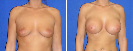 "22 years old, 5'3"", 375cc Silicone/Gel Implants, Preop 32B to Postop 32D"