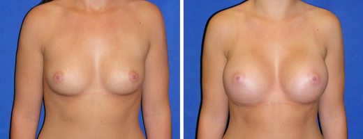 "21 years old, 5'3"", 125lbs, 339cc Silicone/Gel Implants, Preop 34A to Postop 34C"