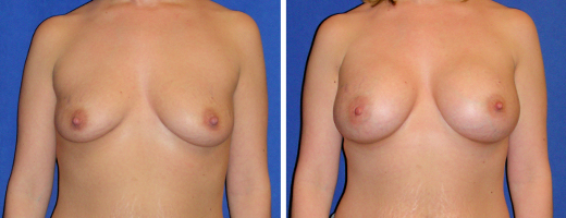 "28 years old, 5'5"", 128lbs, 400cc Silicone/Gel Implants, Preop 36B to Postop 36DD"
