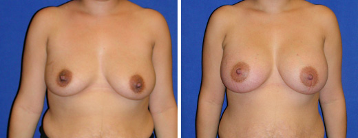 "26 years old, 5'3"", 144lbs, 350cc Silicone/Gel Implants, Preop 36C to Postop36D"