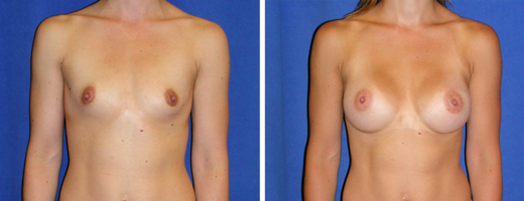 "33 years old, 5'3"", 115lbs, 339cc Silicone/Gel Implants, Preop 34A to Postop 34C"