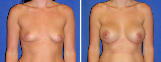 4776 breast augmentation st charles plastic surgery dr ghaderi featured