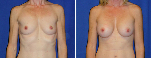 "41 years old, 5'4"", 110lbs, 325cc Silicone/Gel Implants, Preop 32AA to Postop 32B"