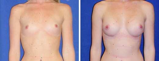 Illinois breast augmentation procedure