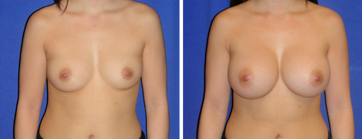 6524 breast augmentation st charles plastic surgery dr ghaderi featured