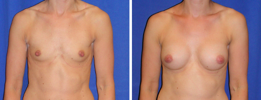 "34 years old, 5'5"", 120lbs, 250cc Silicone/Gel Implants, Preop 32A to Postop 32C"