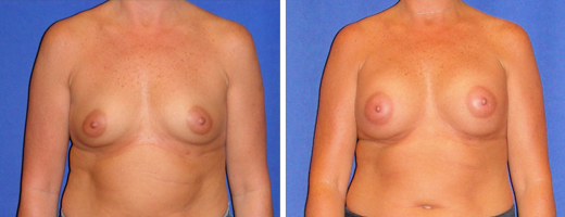 "44 years old, 5'6"", 144lbs, 350cc Silicone/Gel Implants, Preop 36B to Postop 36C"