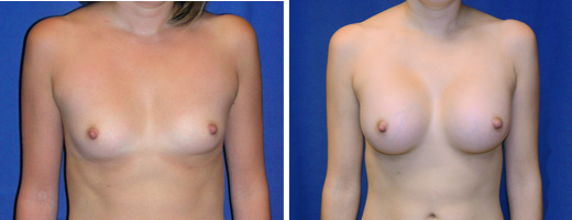"26 years old, 5'5"", 115lbs, 375cc Silicone/Gel Implants, Preop 34B to Postop 32DD"