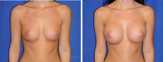 "22 years old, 5'4"", 111lbs, 350cc Silicone Gel Implants, Preop 32B to Postop 32D"