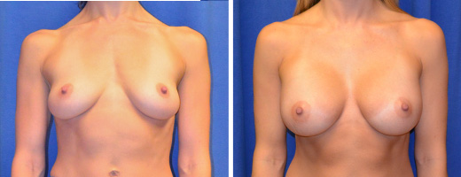 "33 years old, 5'5"", 118lbs, 350cc Silicone/Gel Implants, Preop 34B to Postop 34D"