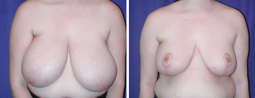 "23 years old, 6'0"", 180lbs, 1755gms right, 1944gms left removed from breasts, Preop 38I to Postop 38C"