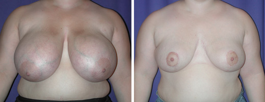 """27 years old, 5'1"""", 180lbs, approx 1075gms removed from each breast, Preop 36DD to Postop 36C"""