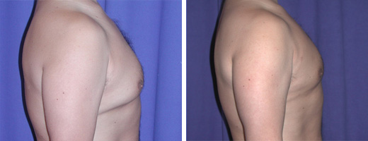 "37 years old, 5'4"", 137lbs, liposuction removal of 500gms excess male breast tissue"