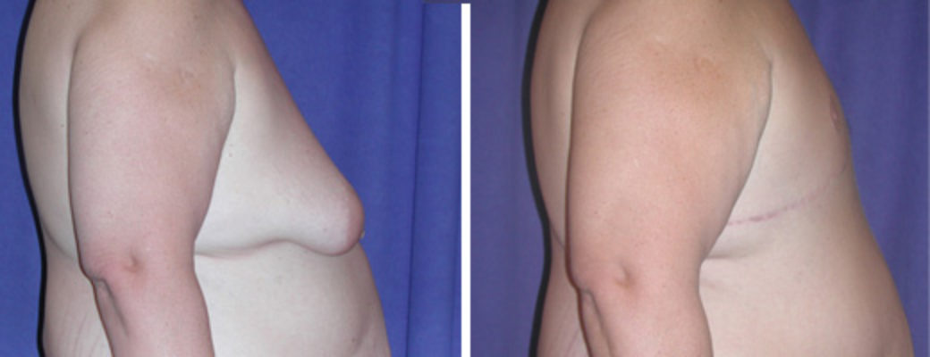 "47 years old, 6'3"", excision of excess male breast tissue after massive weight loss"