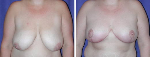 1692-breast-reduction-st-charles-plastic-surgery-dr-ghaderi-featured