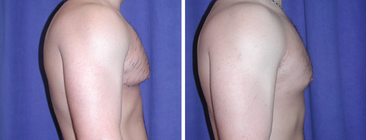 """22 years old, 5'11"""", 192lbs, liposuction removal of 400gms excess male breast tissue"""