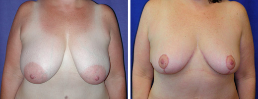 "48 years old, 5'3"", 160lbs, 600gms right, 400gms left removed from breasts, Preop 38DD to  Postop 38C"