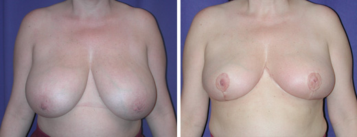 "41 years old, 5'6"", 168lbs, approx 475gms removed from each breast, Preop 38D to Postop 38C"
