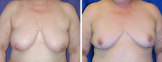 "59 years old, 5'5"", 220lbs, approx 525gms removed from each breast, Preop 38DD to Postop  40C"