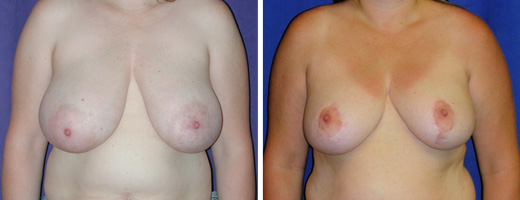 """35 years old, 5'6"""", 175lbs, 770gms right, 561gms left removed from breasts, Preop 38DD to  Postop 38C"""