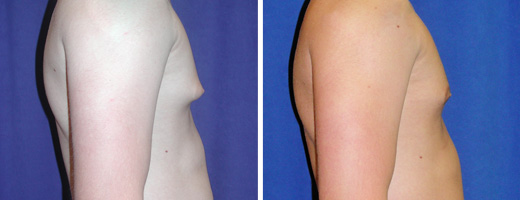 2121 gynecomastia st charles plastic surgery dr ghaderi featured
