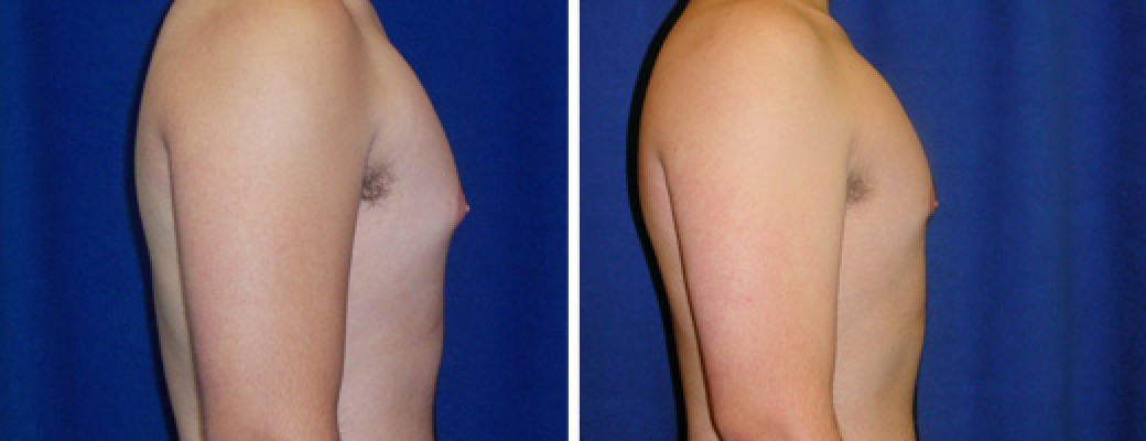 "19 years old, 5'10"", 175lbs, excision of excess male breast tissue"
