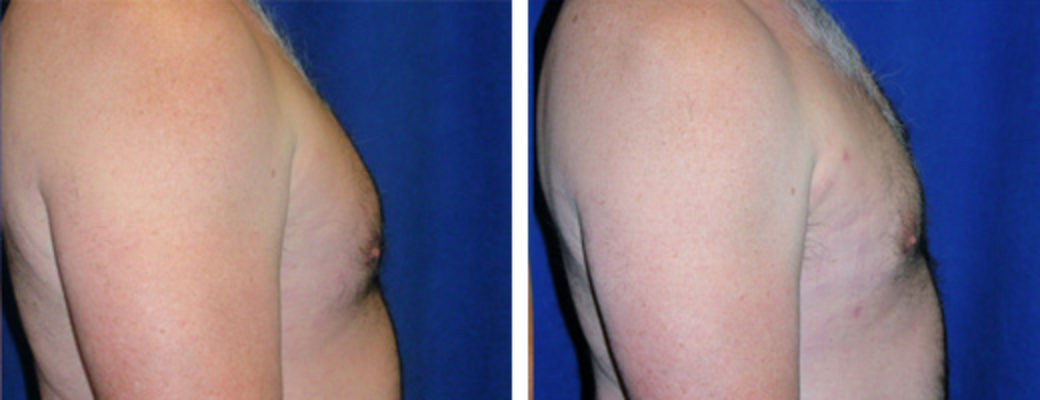"52 years old, 5'7"", 172lbs, liposuction removal of 700gms excess male breast tissue"