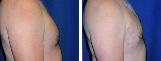 2243-gynecomastia-st-charles-plastic-surgery-dr-ghaderi-featured-02