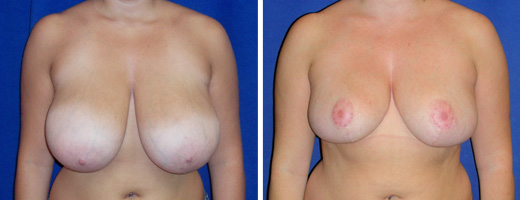 """21 years old, 5'3"""", 150lbs, 741grms right, 851grms left removed from breasts, Preop 36DDD to Postop 36D"""