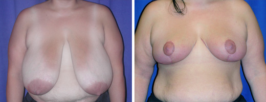 "35 years old, 5'3"", 210lbs, 1139gms right, 1331gms left removed from breasts, Preop 42DDD to Postop 40D"