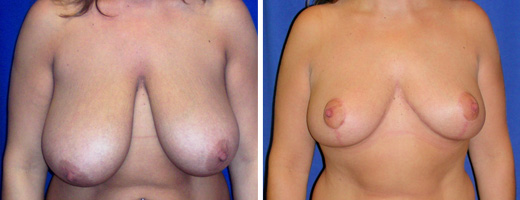 "31 years old, 5'3"", 148lbs, 665gms right, 619grms left removed from breasts, Preop 38DDD to Postop 36D"