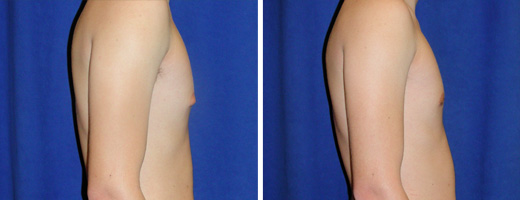 2441 gynecomastia st charles plastic surgery dr ghaderi featured