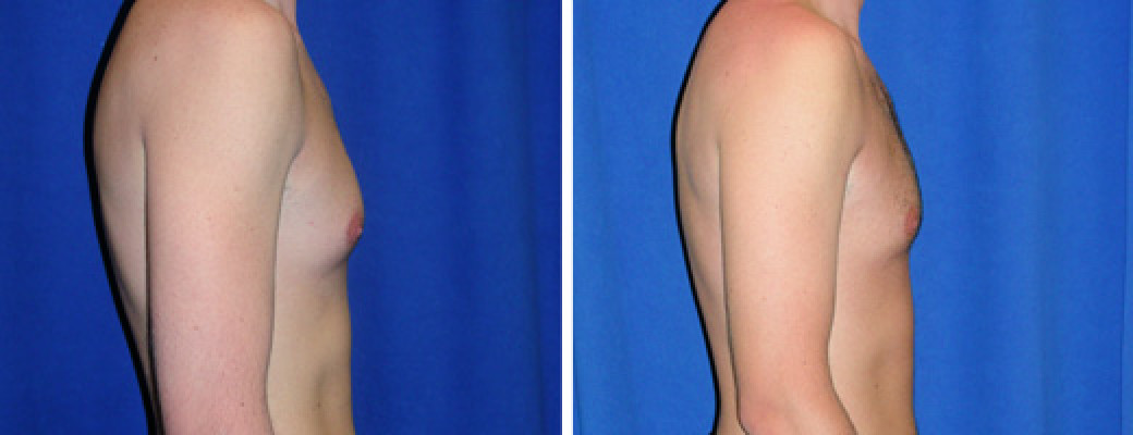 "27 years old, 6'0"", 160lbs, liposuction removal of 200gms excess male breast tissue"