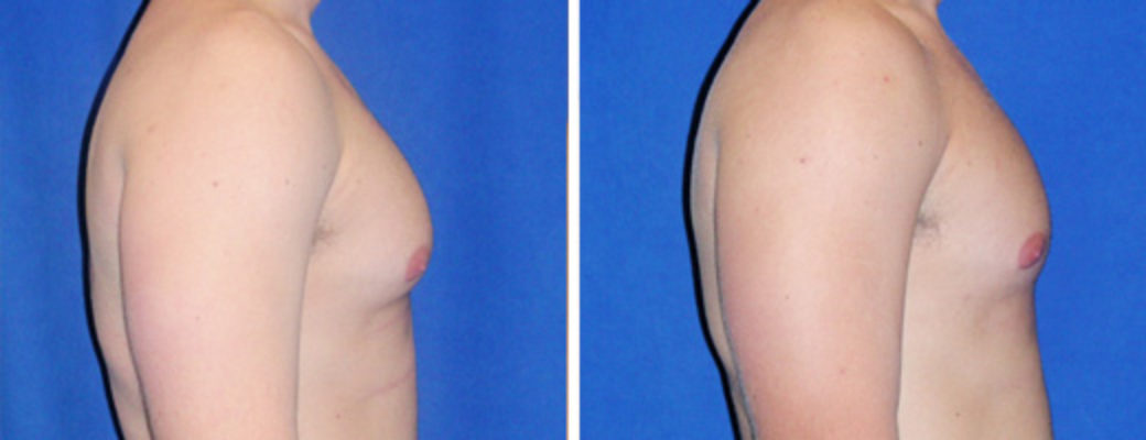 "27 years old, 6'0"", 185lbs, liposuction removal of 350gms excess male breast tissue"
