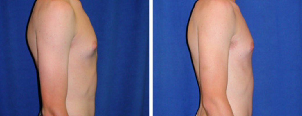 "17 years old, 6'1"", 150lbs, excision of excess male breast tissue"