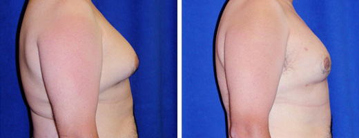 """42 years old, 5'7"""", 176lbs, liposuction removal of 550gms excess male breast tissue"""